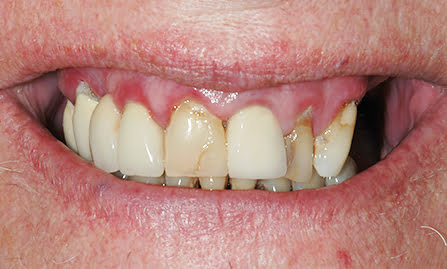lidums dental adelaide australia all on 4 dental implants cosmetic dentistry