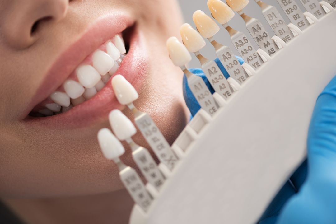 Dental Prosthesis Adelaide