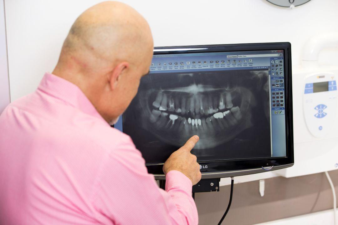 Best Dentist Adelaide
